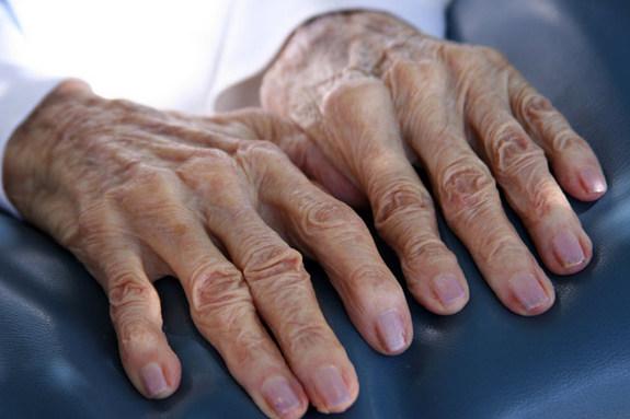 frail hands
